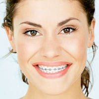 Cost of Braces - Invisalign Costs